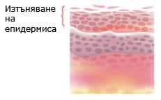 Изъняване на кожата