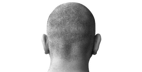 Мъж с гола глава