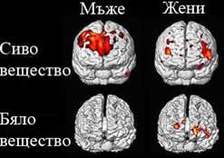 Мъжкият и женският мозък